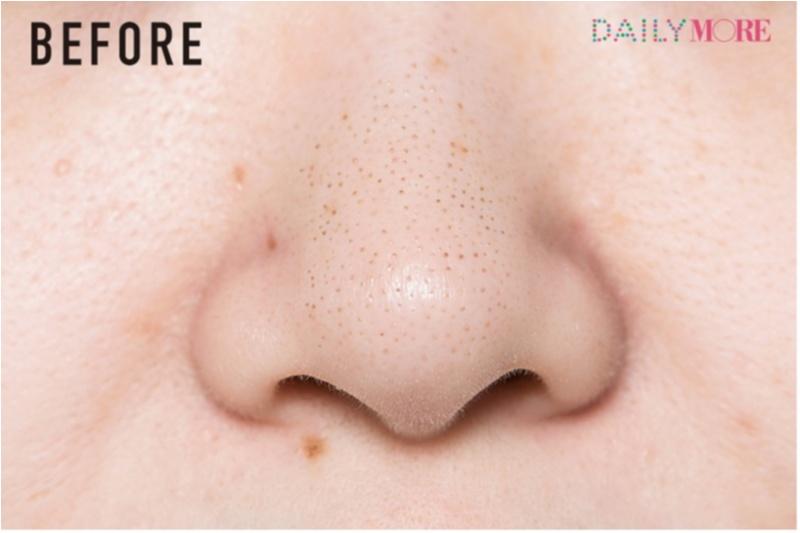 毛穴ケア特集 | つまり・黒ずみ・ひらき・角栓・ケア方法・おすすめの化粧水・美容液・洗顔料・クレンジング_36