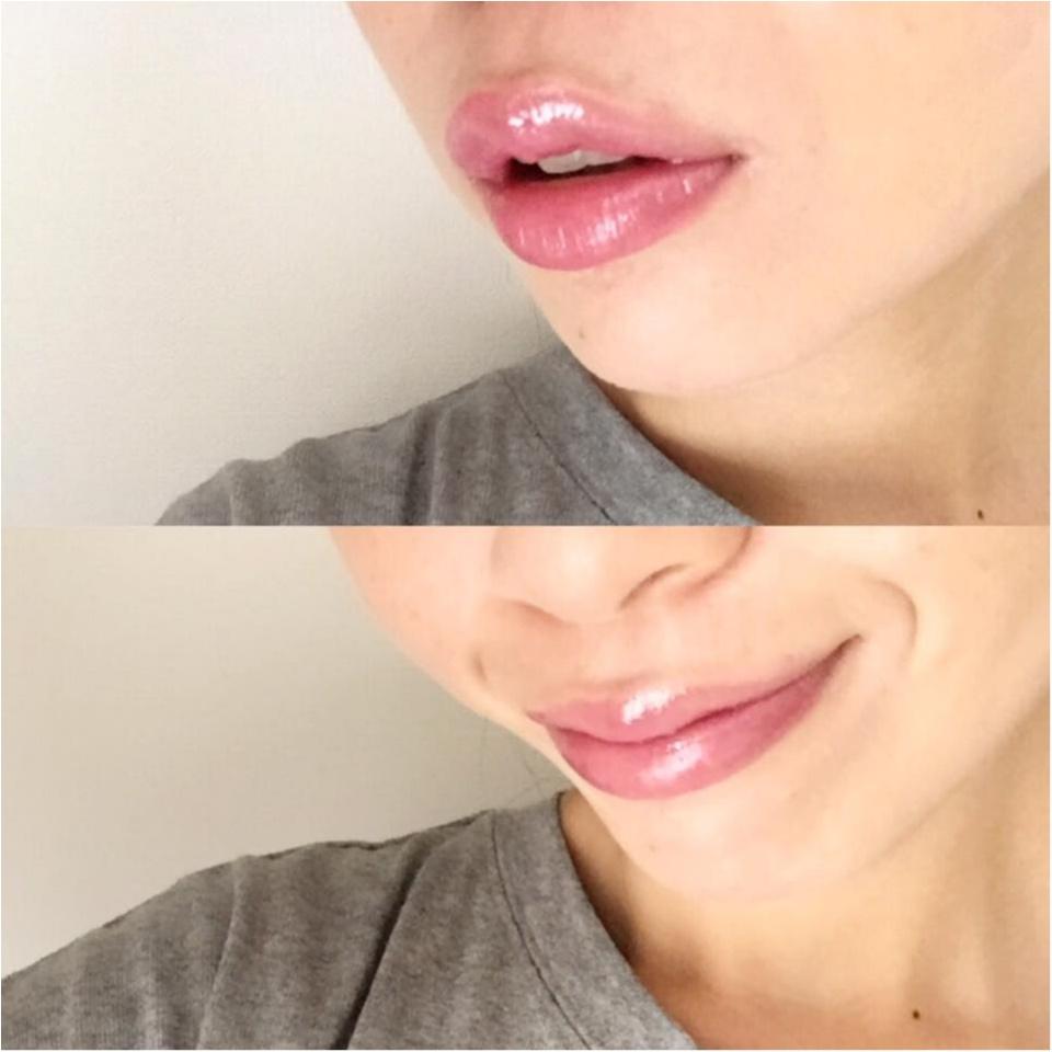 やっぱりいい!濱田マサルさんプロデュースblanche etoile(ブラン エトワール)の唇用美容液「MA LIP」_2