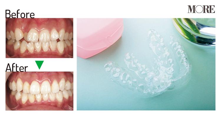 """マスク生活の今こそ歯列矯正のチャンス♡ 最短3~4ヶ月で終了する""""マウスピース矯正""""で小顔&美しい歯に_1"""