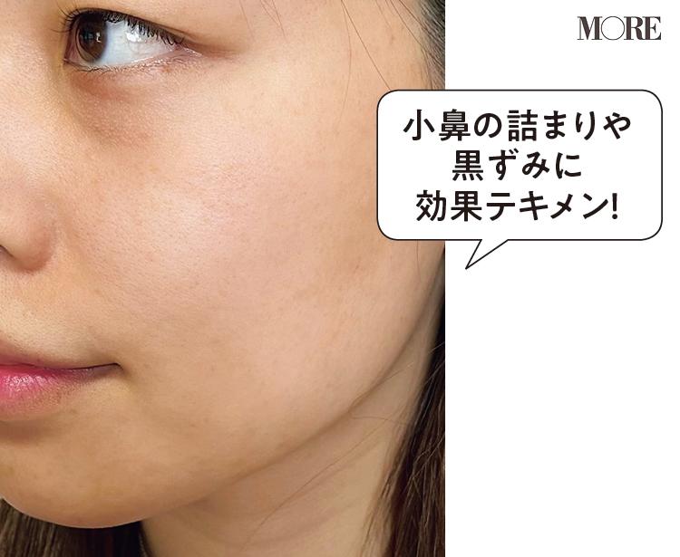 雪肌精 クリアウェルネス パウダー ウォッシュ D・T (3週間後)