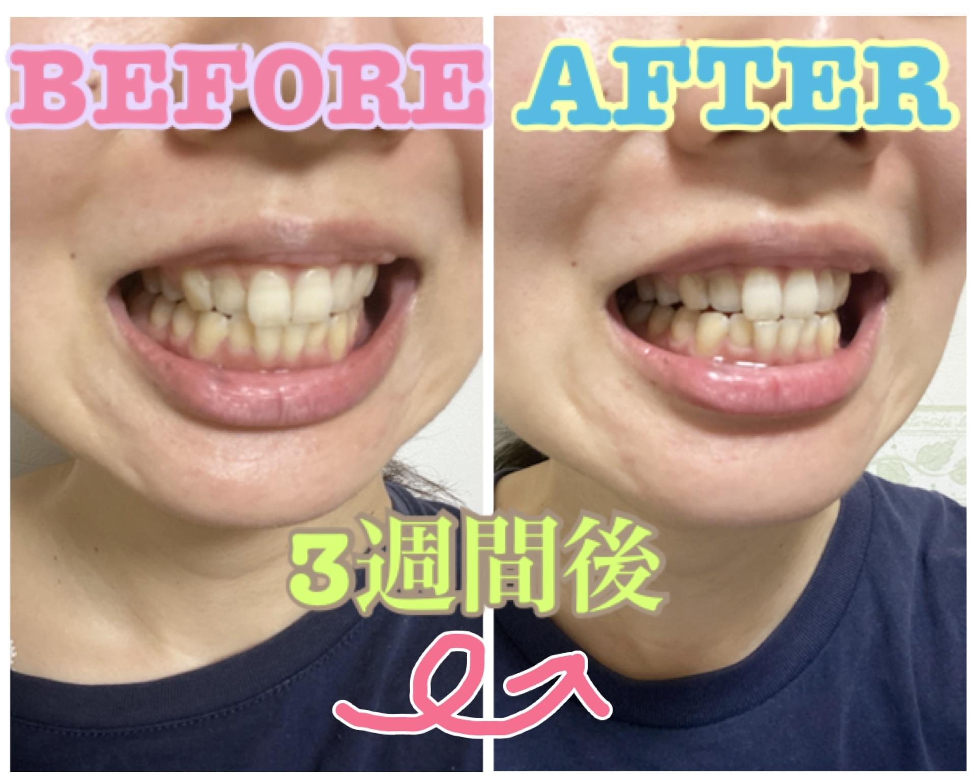 【おうちケア】毎日の歯ブラシで口腔ケアandホワイトニング!_5