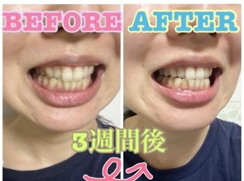 【おうちケア】毎日の歯ブラシで口腔ケアandホワイトニング!