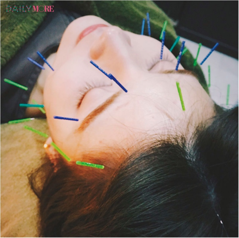 村田倫子ちゃんは『HIMEBARI』の美容鍼でリフレッシュ♡ 【教えて! モアビューティズの1UP美容♡】_2
