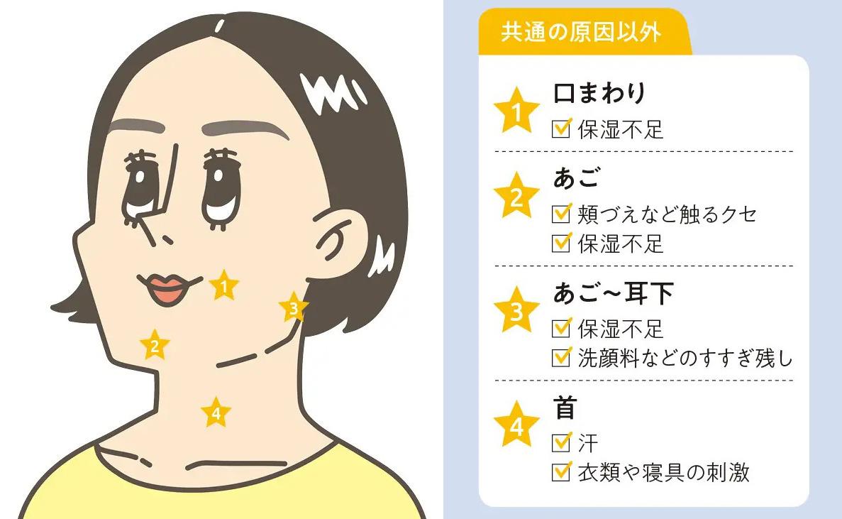 口まわり・あご〜耳下のニキビは保湿不足や汚れによるもので、首は汗や衣類等の刺激が原因