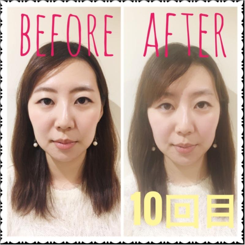 【小顔矯正】10回目を終えて見た目の変化にぎょぎょっ!!_6