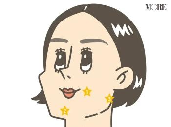 【大人ニキビの原因とケア方法】皮膚科医が教える対策法とおすすめケアアイテムまとめ
