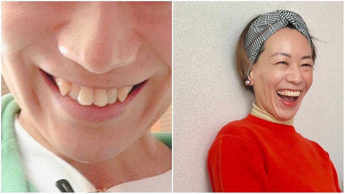 大人の歯列矯正インビザラインビフォーアフター