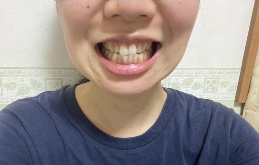 【おうちケア】毎日の歯ブラシで口腔ケアandホワイトニング!_6